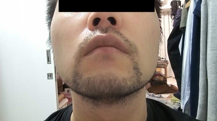 湘南美容外科の蒲田店でヒゲ脱毛体験1回目の体験レポート。ウルトラ美肌脱毛(IPL)初体験の感想