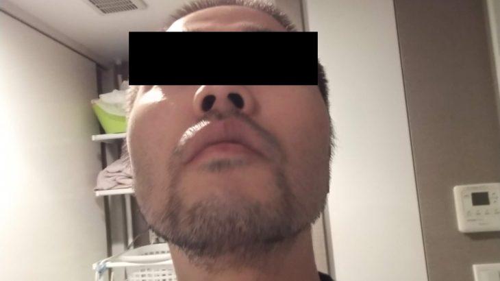 湘南美容外科の蒲田店でヒゲ脱毛体験3回目 口コミ体験レビュー。そろそろ成果が欲しい