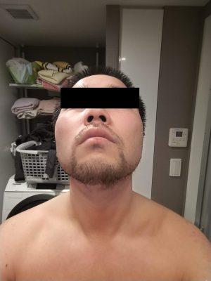 湘南美容外科の蒲田店でヒゲ脱毛体験6回目 体験レビュー。29800円の効果はいかに