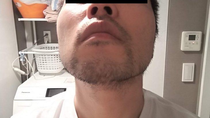 湘南美容外科の品川店でヒゲ脱毛体験8回目 体験レビュー。ジェントルレイズ(アレキサンドライト)で施術