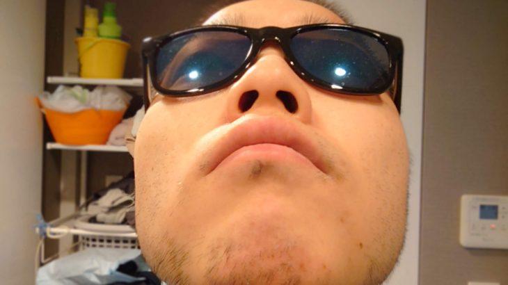 湘南美容外科の品川店でヒゲ脱毛体験11回目 体験レビュー。白髭は除去できないことに気づく